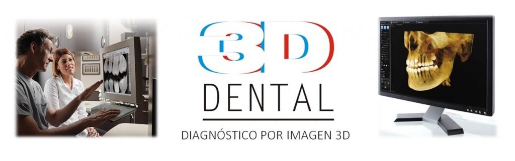 Diagnóstico por imagen 3D